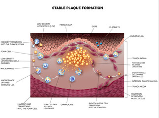 Stable plaque formation in the human artery. Atherosclerosis