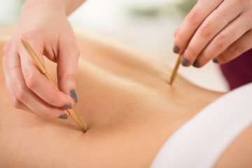 Woman during acupuncture session