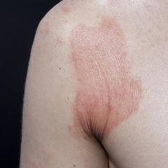 skin dermatitis