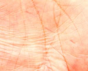 human skin wrinkles