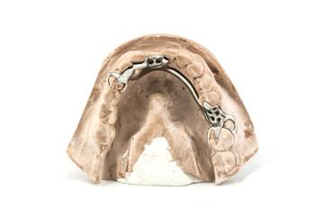 Dental cast with metal framework for partial denture