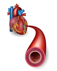 Healthy artery and heart anatomy
