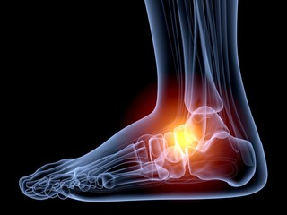 Human Foot. 3D. Ankle in pain x-ray