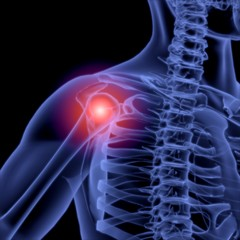 Shoulder. 3D. Shoulder inflammation