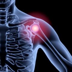 Shoulder. 3D. Shoulder inflammation