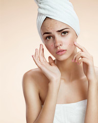 girl pointing her acne with a towel on her head