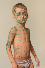 European boy who is sick with chickenpox