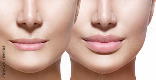 Before and after lip filler injections. Lips closeup over white Poster