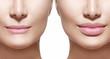 Leinwandbild Motiv Before and after lip filler injections. Lips closeup over white
