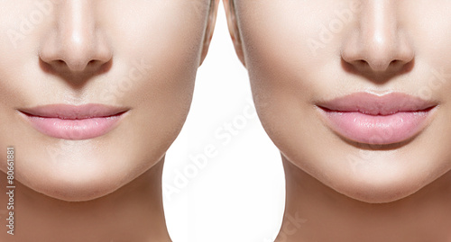 Before and after lip filler injections. Lips closeup over white - 80661881