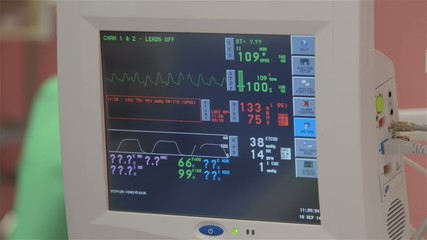 ECG monitor in the operational