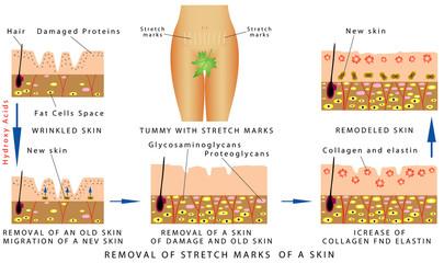 Stretch Marks of a skin