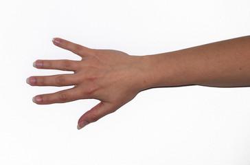 braccio disteso con mano aperta