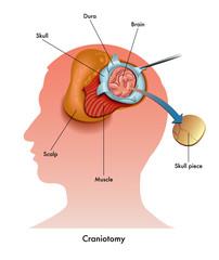 craniotomia