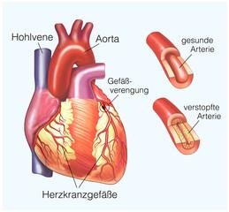 Herzkranzgefässverengung