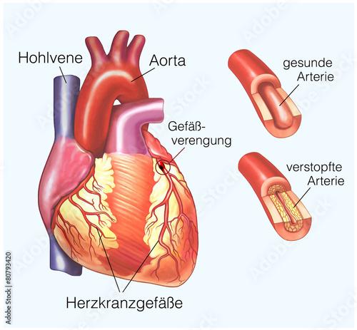 Leinwandbild Motiv Herzkranzgefässverengung