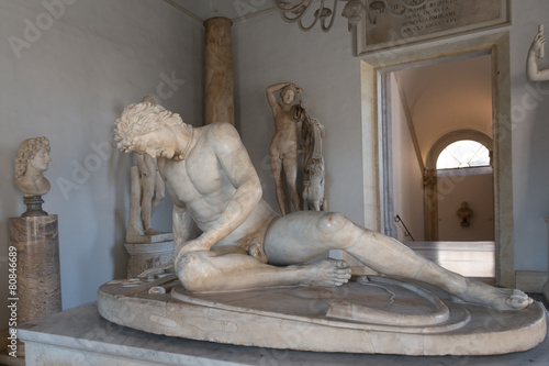 Famous Dying Gaul statue in Capitoline Museum, Rome - 80846689