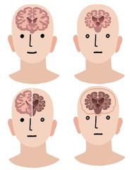 認知症 アルツハイマー Brains of Dementia and Healthy man