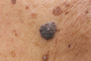 suspicious mole on skin