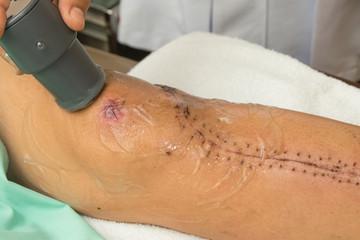 Physiotherapist treats knee surgery wound