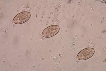 The human whipworm (Trichuris trichiura or Trichocephalus trichi
