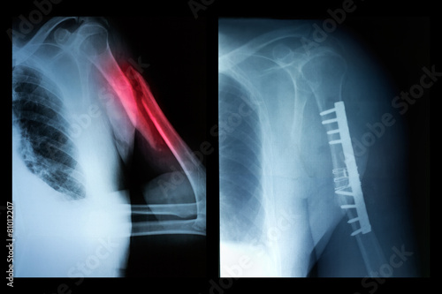 Broken bone before and after surgical intervention - 81012207