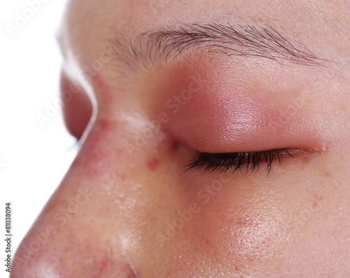 close-up of upper eye lid swell after nose job - 81038094