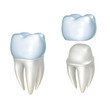 Dental crowns and tooth, isolated on white - 81054407