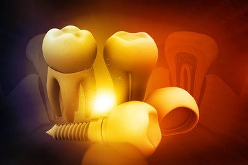 Dental implant concept on beautiful background .