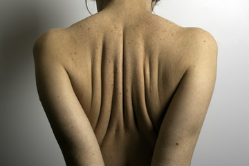 Woman's back with birthmarks