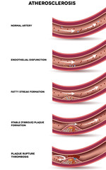 Atherosclerosis. Detailed illustration of Atherosclerosis stages