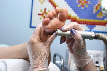 Peeling feet pedicure procedure