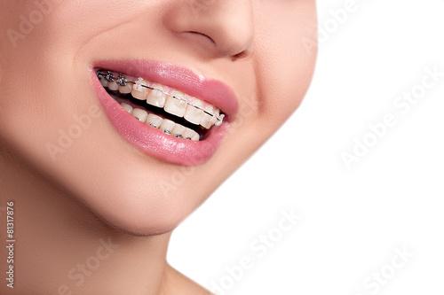 Braces Teeth Female Smile - 81317876