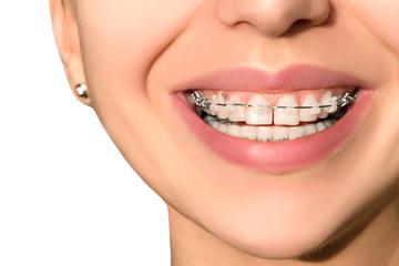 Ceramic Dental Braces Teeth Female Smile