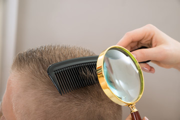 Dermatologist Looking Hair Through Magnifying Glass