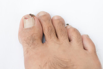 Broken toenail on white background