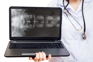 nurse holds computer laptop with spinal column