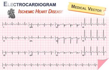Electrocardiogram ( ECG , EKG ) of Ischemic Heart Disease