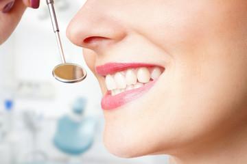 schöne gesunde Zähne einer Frau
