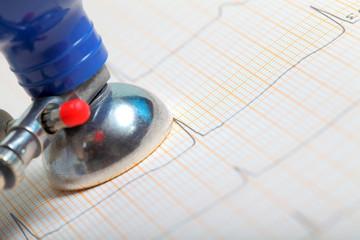 ECG electrode concept of health care
