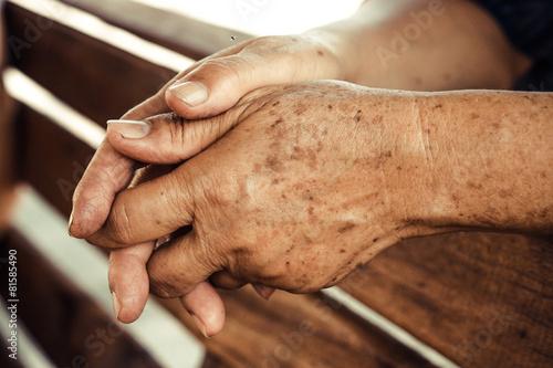 Leinwandbild Motiv hands of a female elderly full of freckles