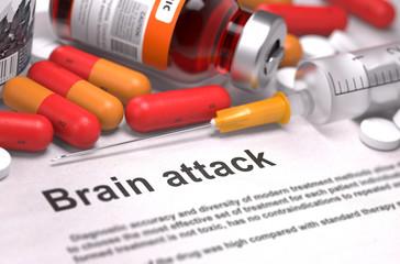 Brain Attack Diagnosis. Medical Concept.