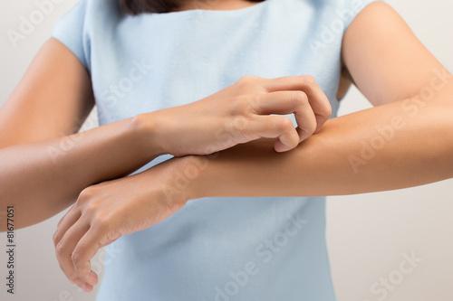 Fototapeta Itching In A Woman