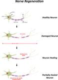 Nerve Regeneration poster