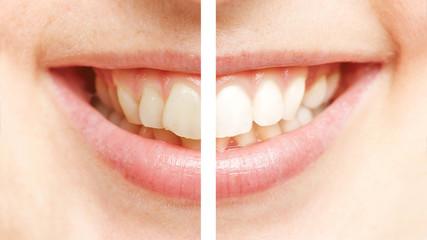 Weiße Zähne nach der Zahnreinigung