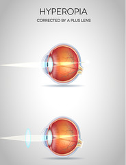 Hyperopia and Hyperopia corrected by a plus lens. Eye vision dis