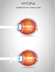 Myopia and myopia corrected by a minus lens. Eye vision disorder