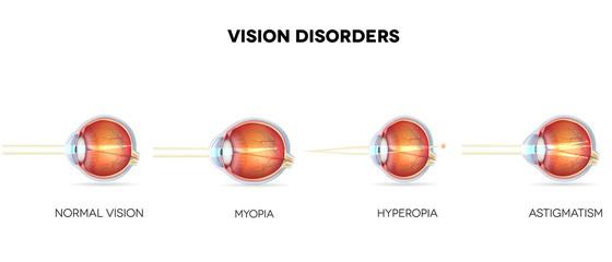Eyesight disorders. Normal eye, Astigmatism, hyperopia and myopi