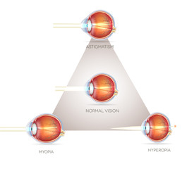 Eye vision triangle, vision disorders. Normal eye, Astigmatism,