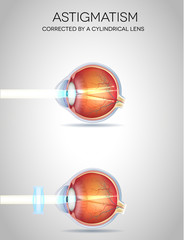 Eye vision disorders. Normal eye, Astigmatism, hyperopia and myo